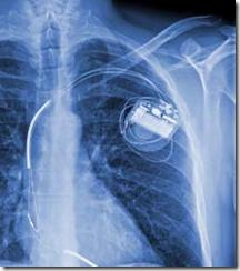 heart-difibrillator-implanted